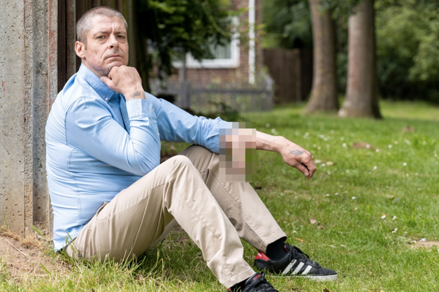 Mann, der Penis durch Infektion verloren hat, bekommt einen neuen an seinem Arm befestigt